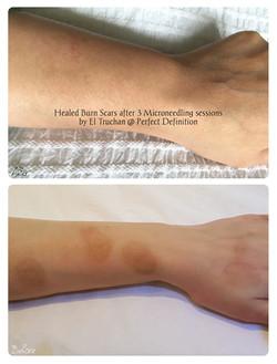 Healed Burn Scars after Microneedling Se