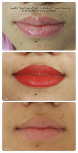 Healed Lip Brightness and Shape Restorat