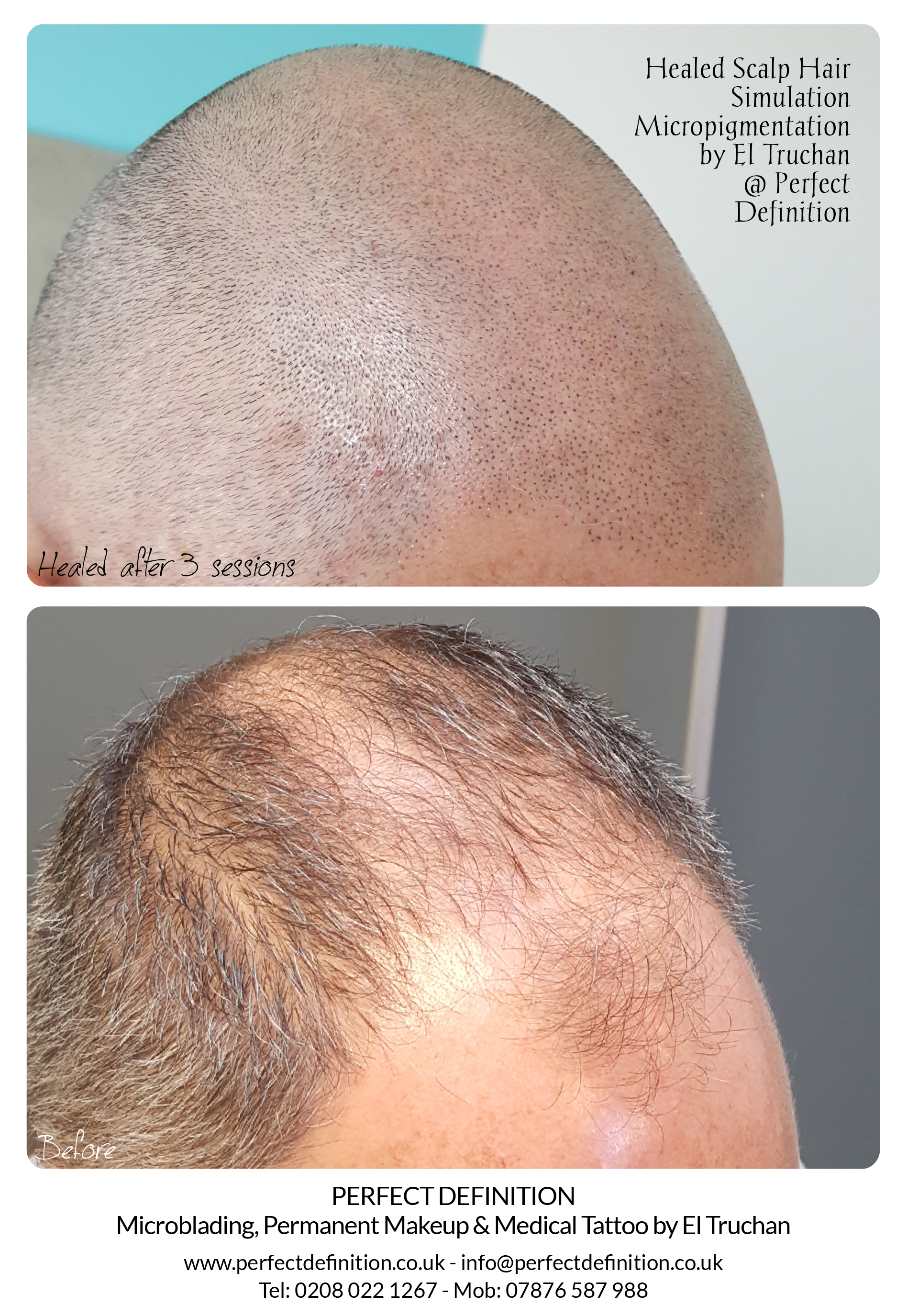 Healed Scalp Hair Simulation Micropigmen