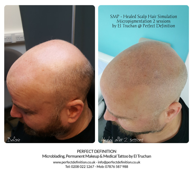 SMP - Healed Scalp Micropigmentation by El Truchan @ Scalp Micro Definition
