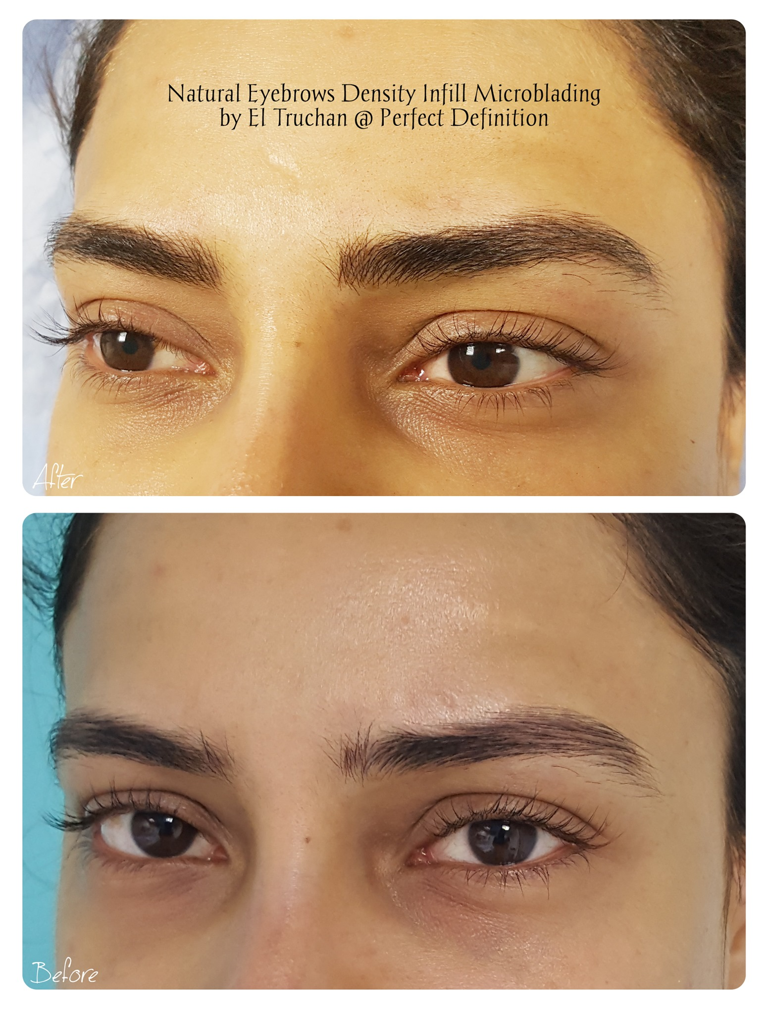 Healed after 1 session Blonde Eyebrows M