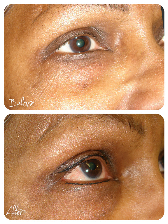 Baby Eyeliner Older Skin