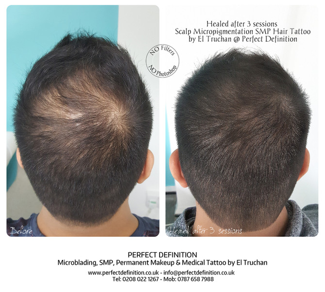 All you need to know about Scalp Micropigmentation.