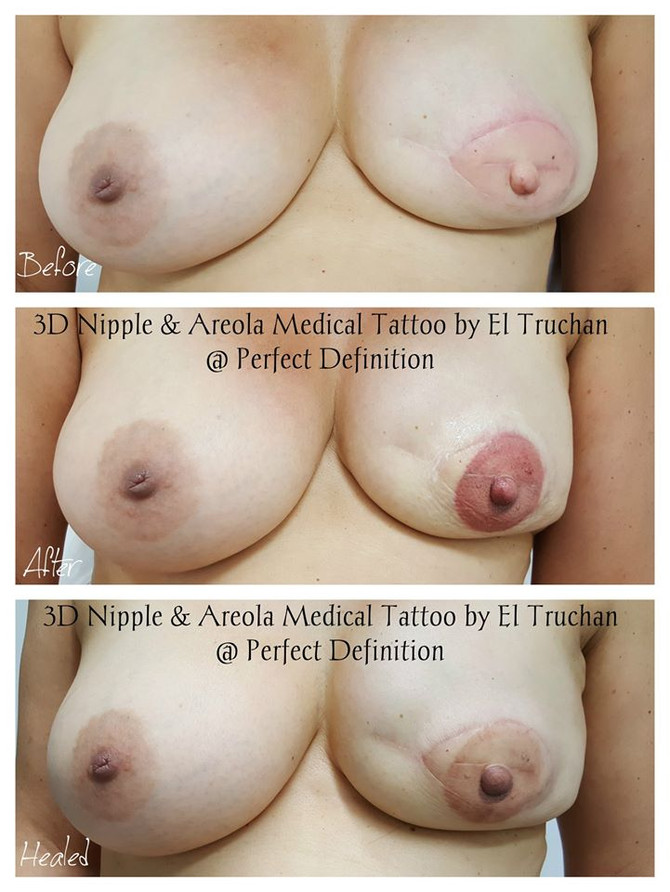 3D Nipple & Areola Reconstruction medical tattoo by El Truchan @ Perfect Definition