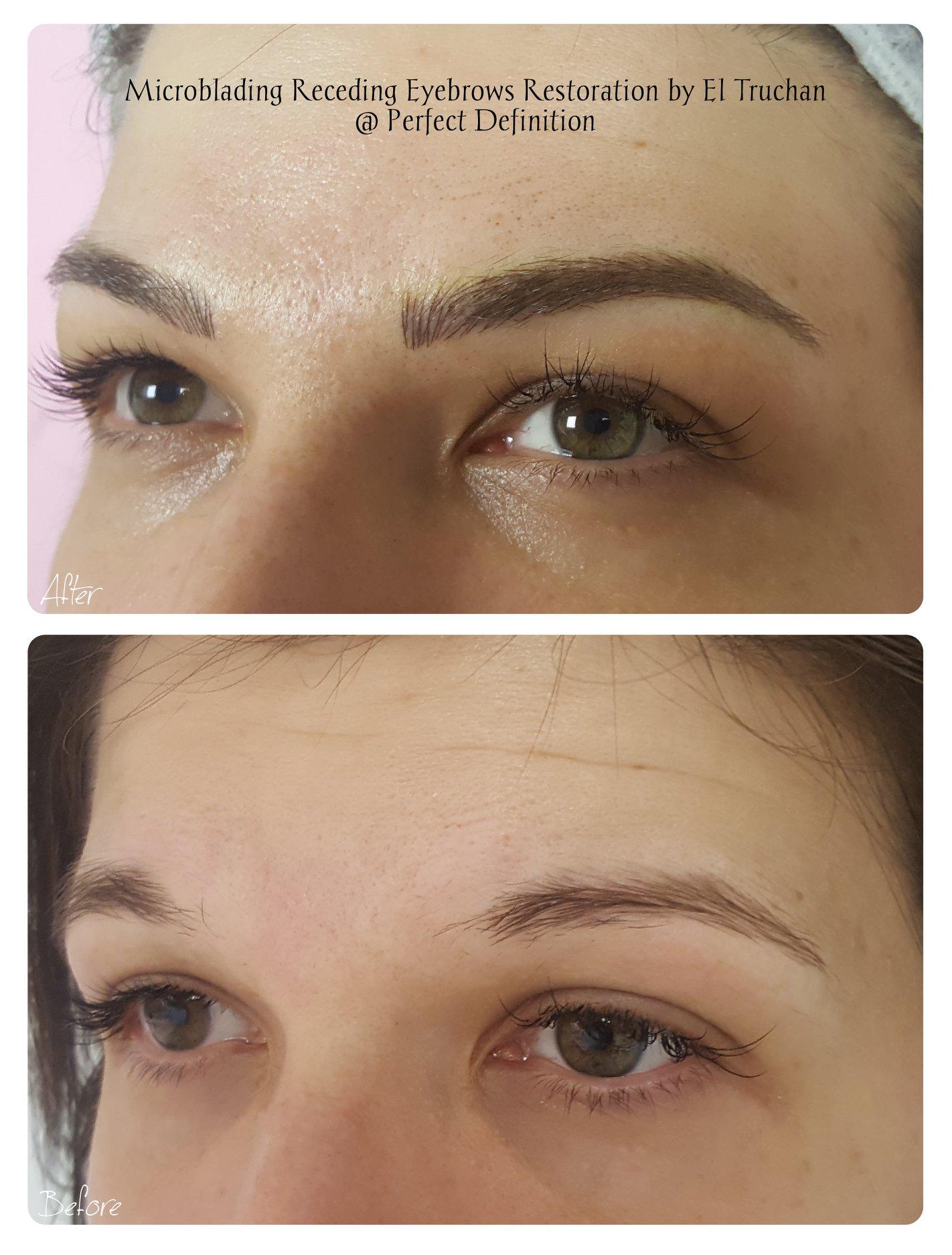 Microblading Receding Eyebrows Restorati