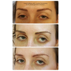 Healed Eyebrows after 1 session Microbla
