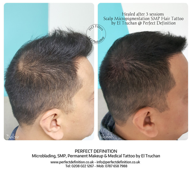 Healed after 3 sessions Scalp Micropigmentation SMP Density Hair Tattoo by El Truchan