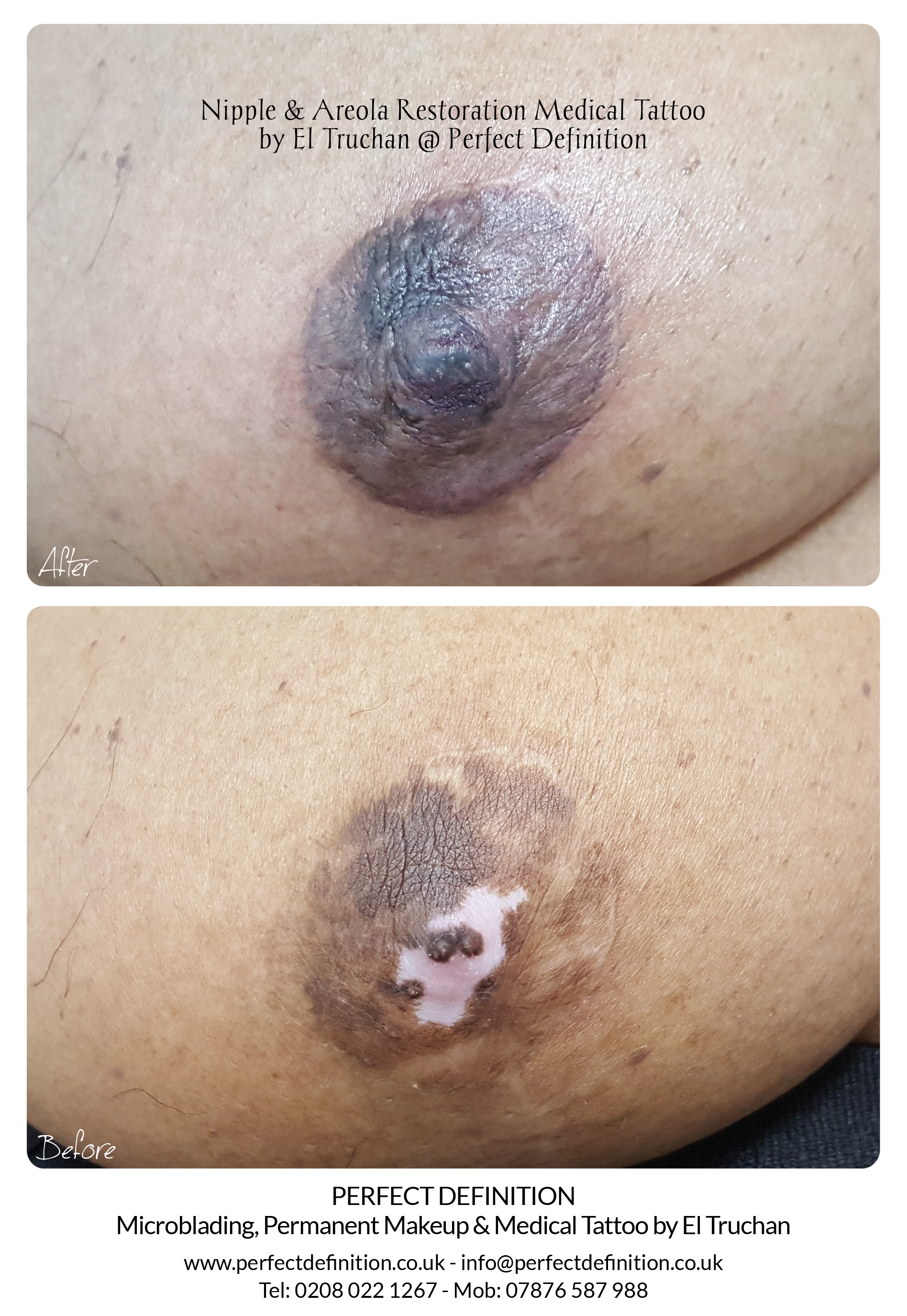 Nipple & Areola Restoration Medical Tatt