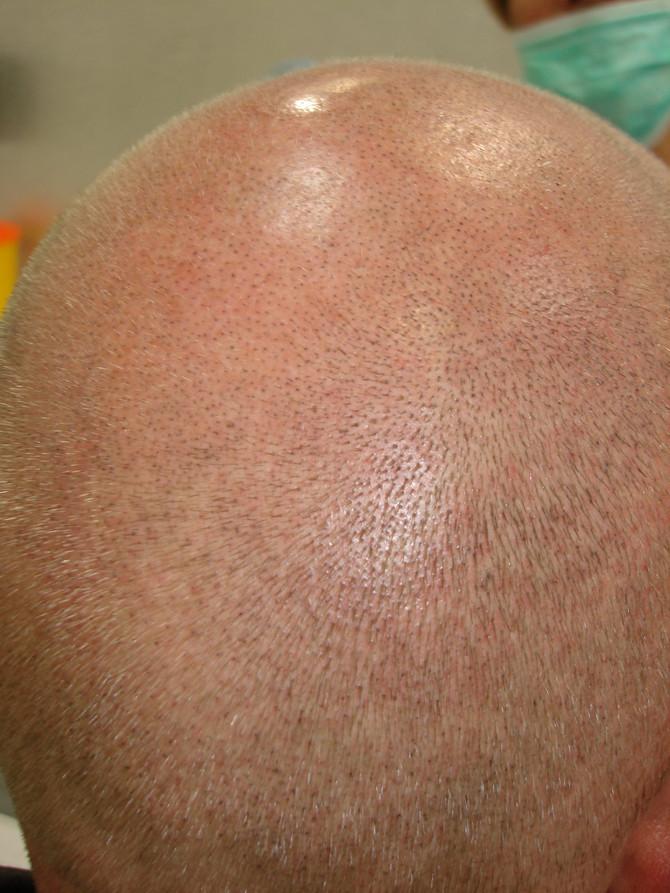 1st Session Scalp Micropigmentation blond hair tattoo by El Truchan @ Scalp Micro Definition