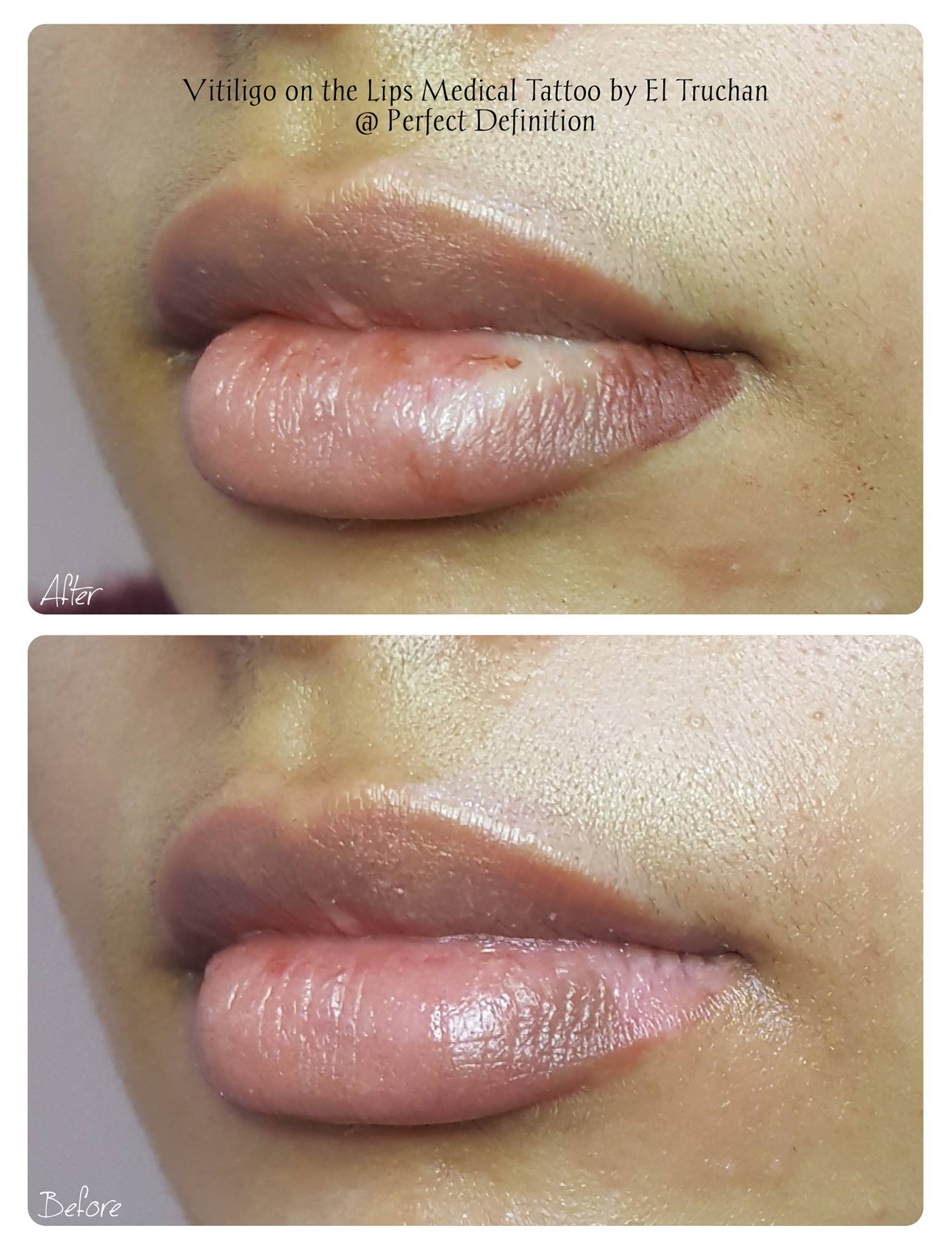 Vitiligo on lips Medical Tattoo