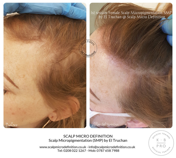 1st session Female Scalp Micropigmentation SMP Hair Tattoo by El Truchan @ Perfect Definition