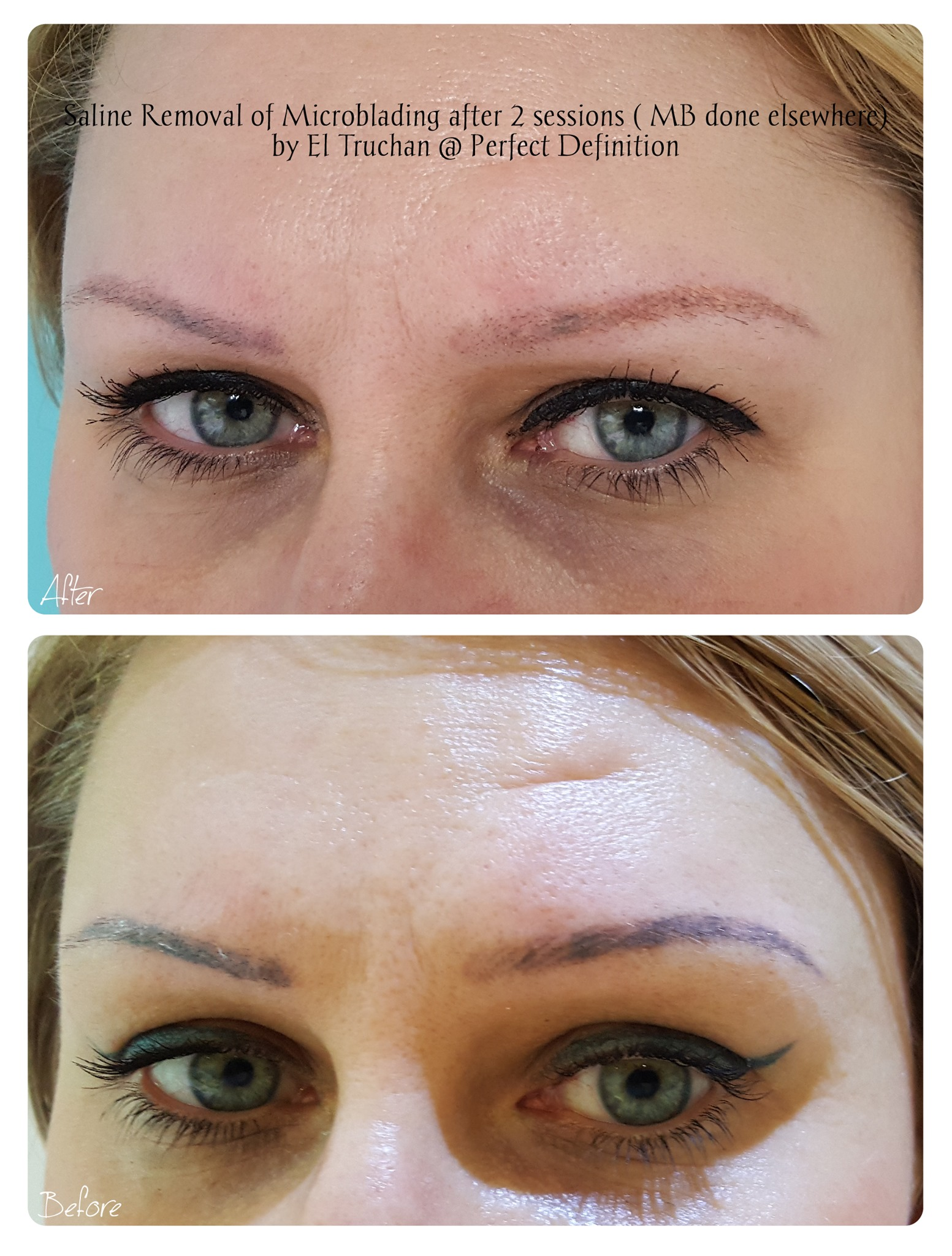 Saline Removal of Microblading after 2 s