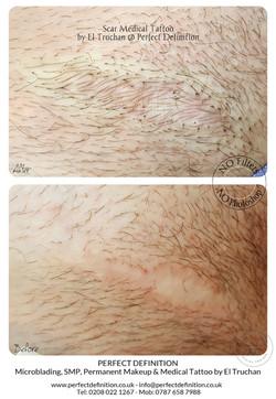 Scar Medical Tattoo by El Truchan @ Perf