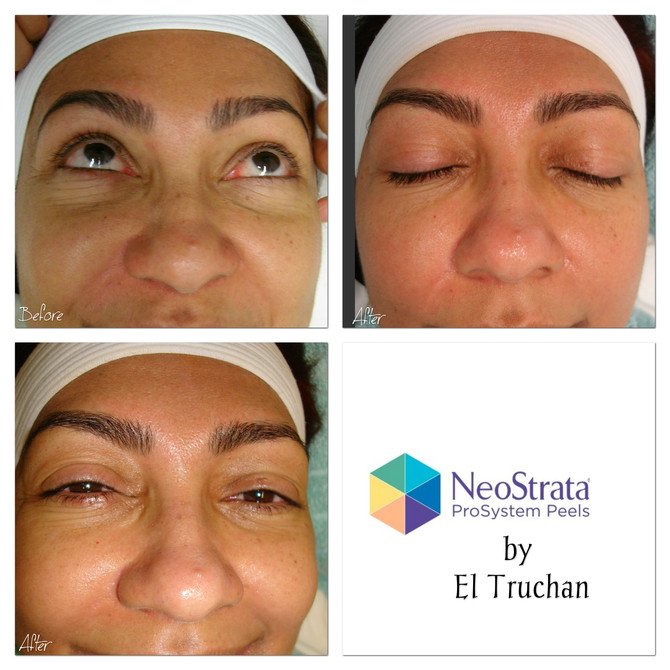 NeoStrata Chemical Peel - BEFORE & AFTER