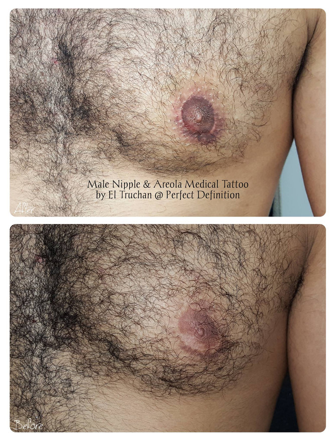 Male Areola Medical Tattoo by El Truchan @ Perfect Definition