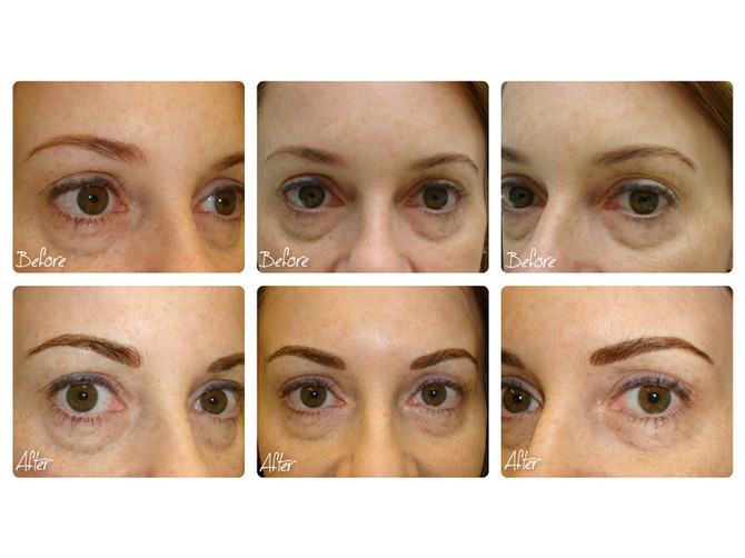 Before & After - Semi Permanent Makeup Eyebrows