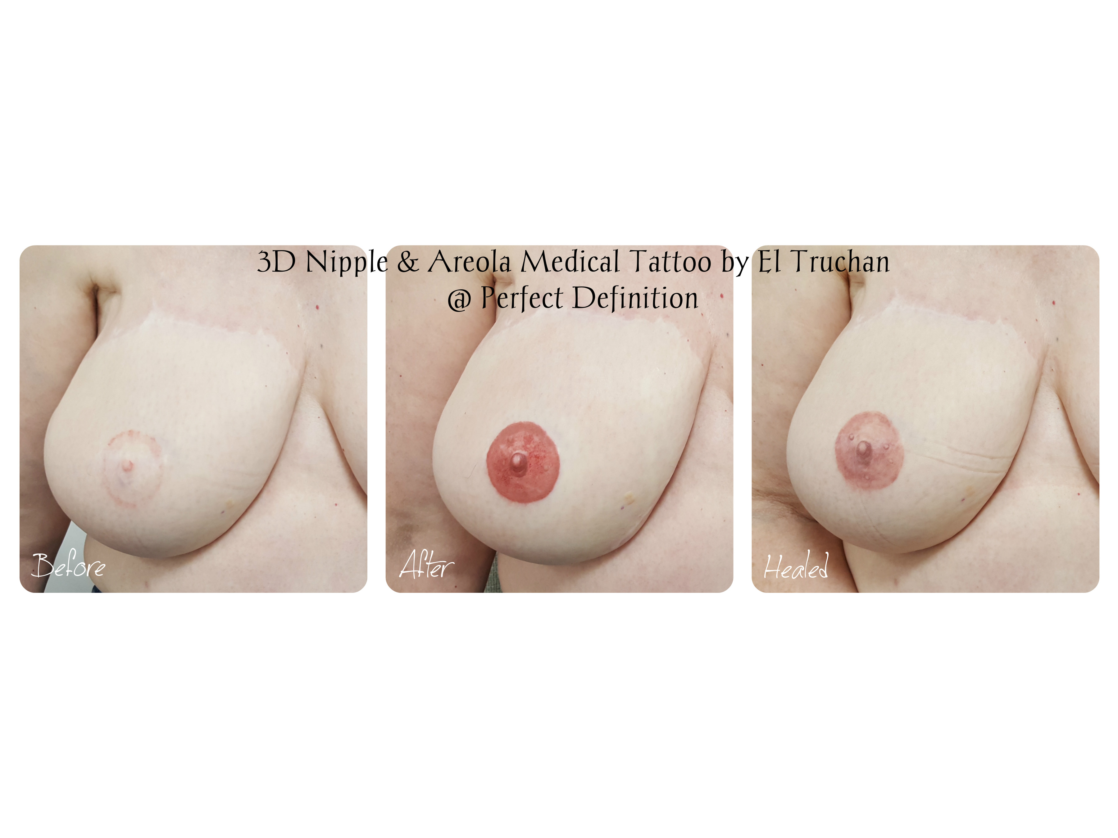 3D Nipple & Areola Medical Tattoo by El Truchan _ Perfect Definition