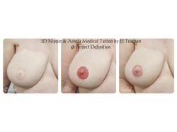 3D Nipple & Areola Medical Tattoo by El Truchan _ Perfect Definition