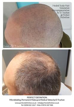 Healed Scalp Hair Tattoo