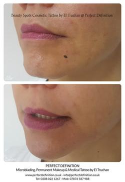 Beauty Spots Cosmetic Tattoo by El Truch
