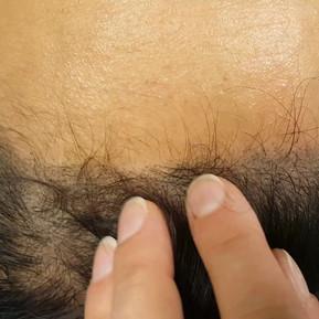 Healed 1 session Female Scalp Micropigme