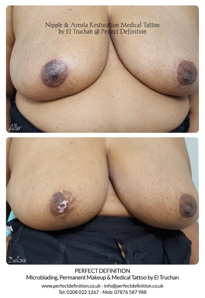 Nipple & Areola Restoration Medical Tattoo by El Truchan @ Perfect Definition
