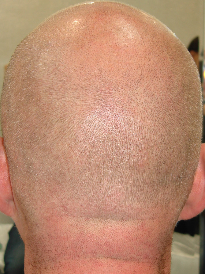 1st session Blond SMP Male Scalp Micropigmentation by El Truchan @ Scalp Micro Definition