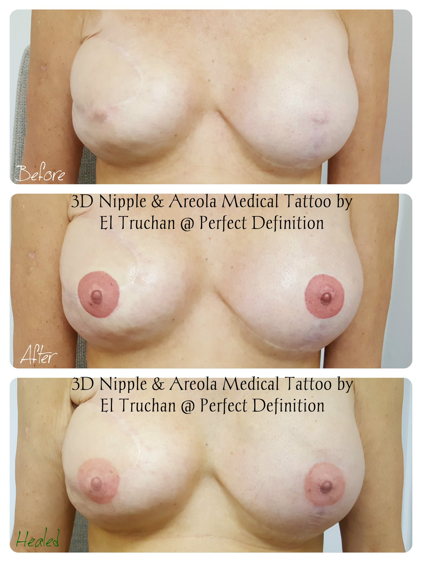 3d Nipple & Areola medical Tattoo by El
