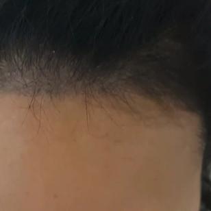 Healed Female Scalp Micropigmntation  SM