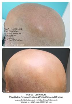 SMP - Healed Scalp Hair Simulation Micro