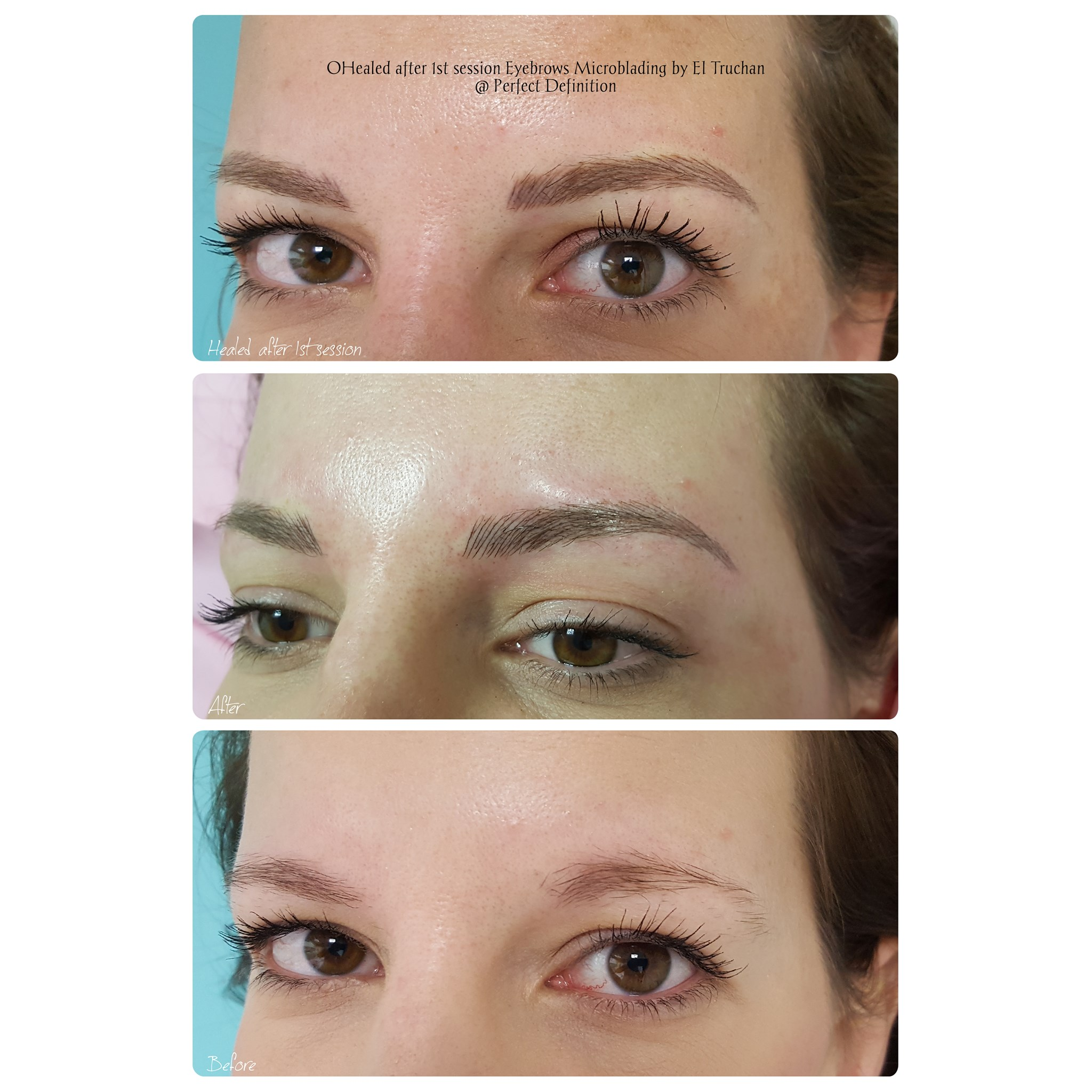 Healed after 1st session Eyebrows Microb