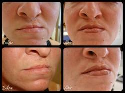 Cleft Lip Reconstruction- Permanent