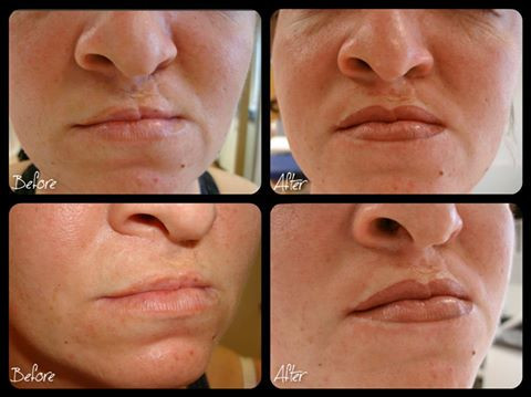 Before & After - Cleft Lip Palate