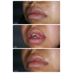 Healed Lip Scarring Camouflage Cosmetic