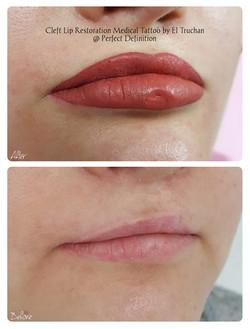 Cleft Lip Restoration Medical Tattoo