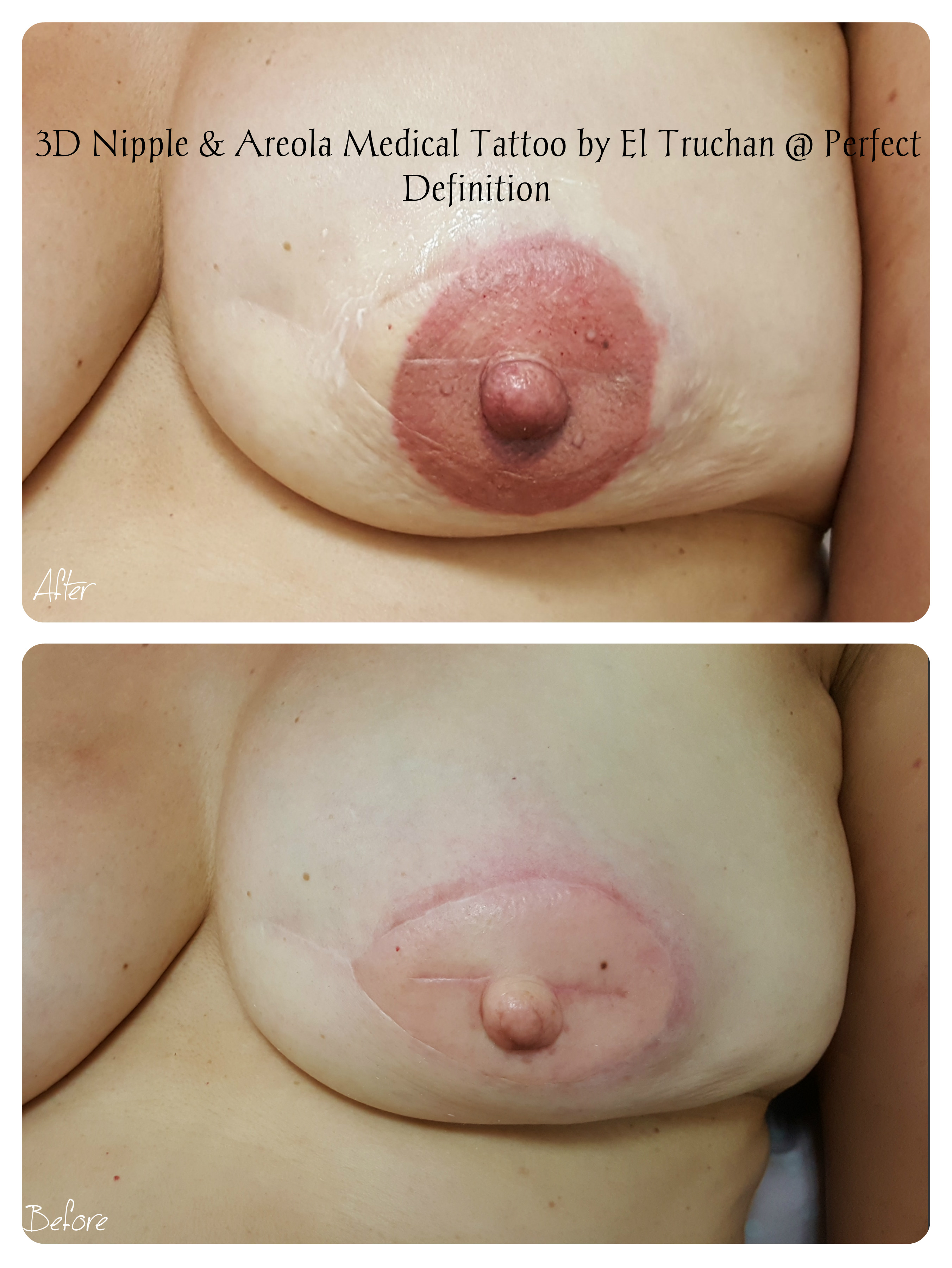 3D Nipple & Areola Reconstruction medical tattoo by El Truchan _ Perfect Definition