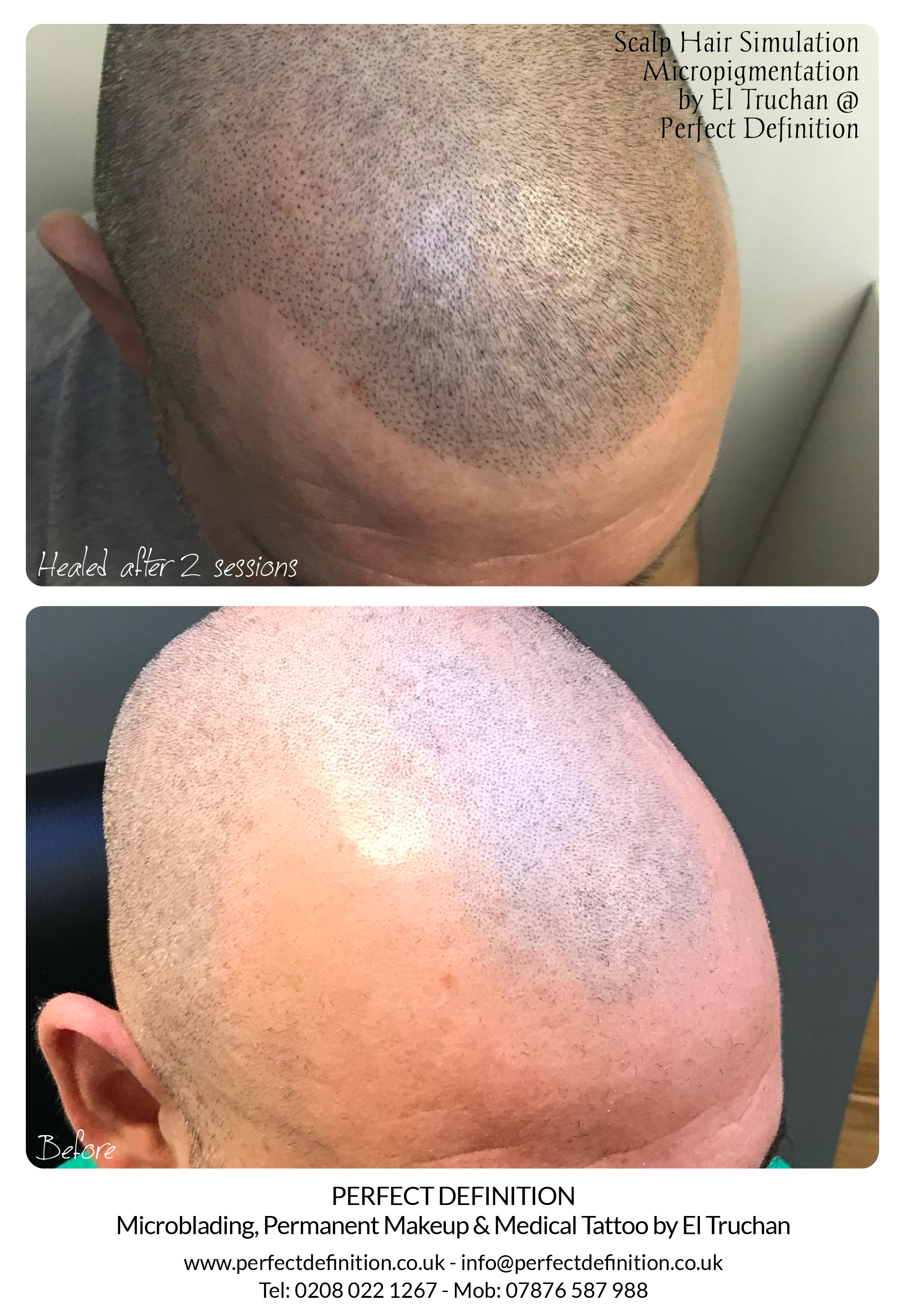 Scalp Hair Simulation Micropigmentation