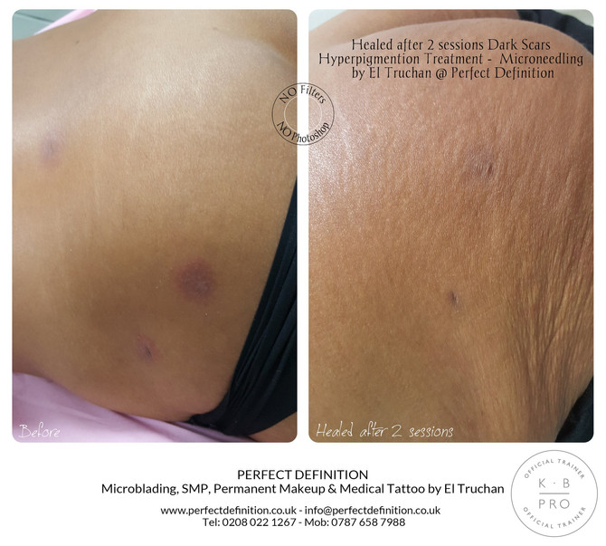 Healed after 2 sessions Dark Scars Hyperpigmention - Microneedling by El Truchan