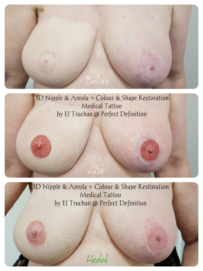 3D Nipple + Areola + Colour & Shape Recovery Medical Tattoo by El Truchan @ Perfect Definition