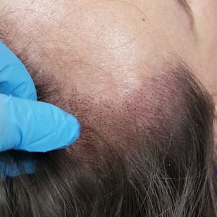 Female Scalp Receeding Hairline Densific