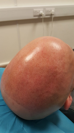 Progress during Scalp Micropigmentation