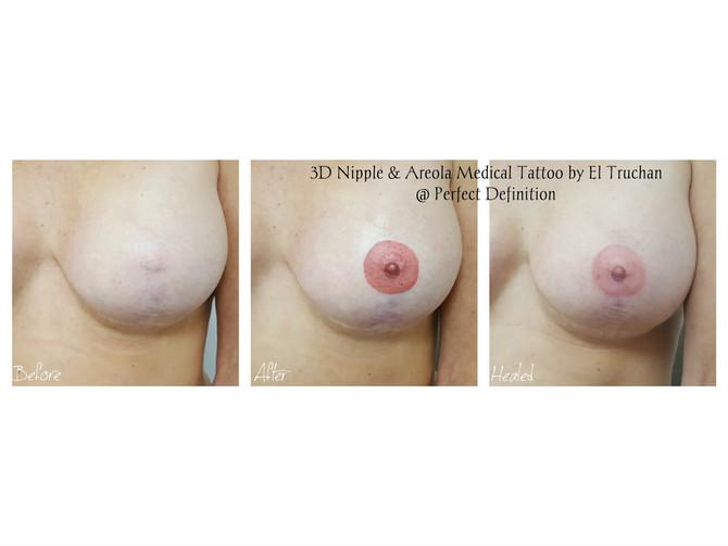 3D Nipple & Areola medical Tattoo by El Truchan @ Perfect Definition London