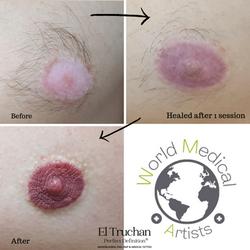 3D Male Vitiligo Nipple & Areola medical Tattoo by El Truchan _ Perfect Definition (1)