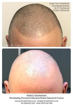 Scalp Hair Simulation Micropigmentation