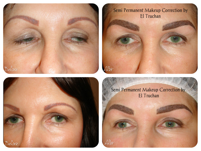 Eyebrow Correction Before - After