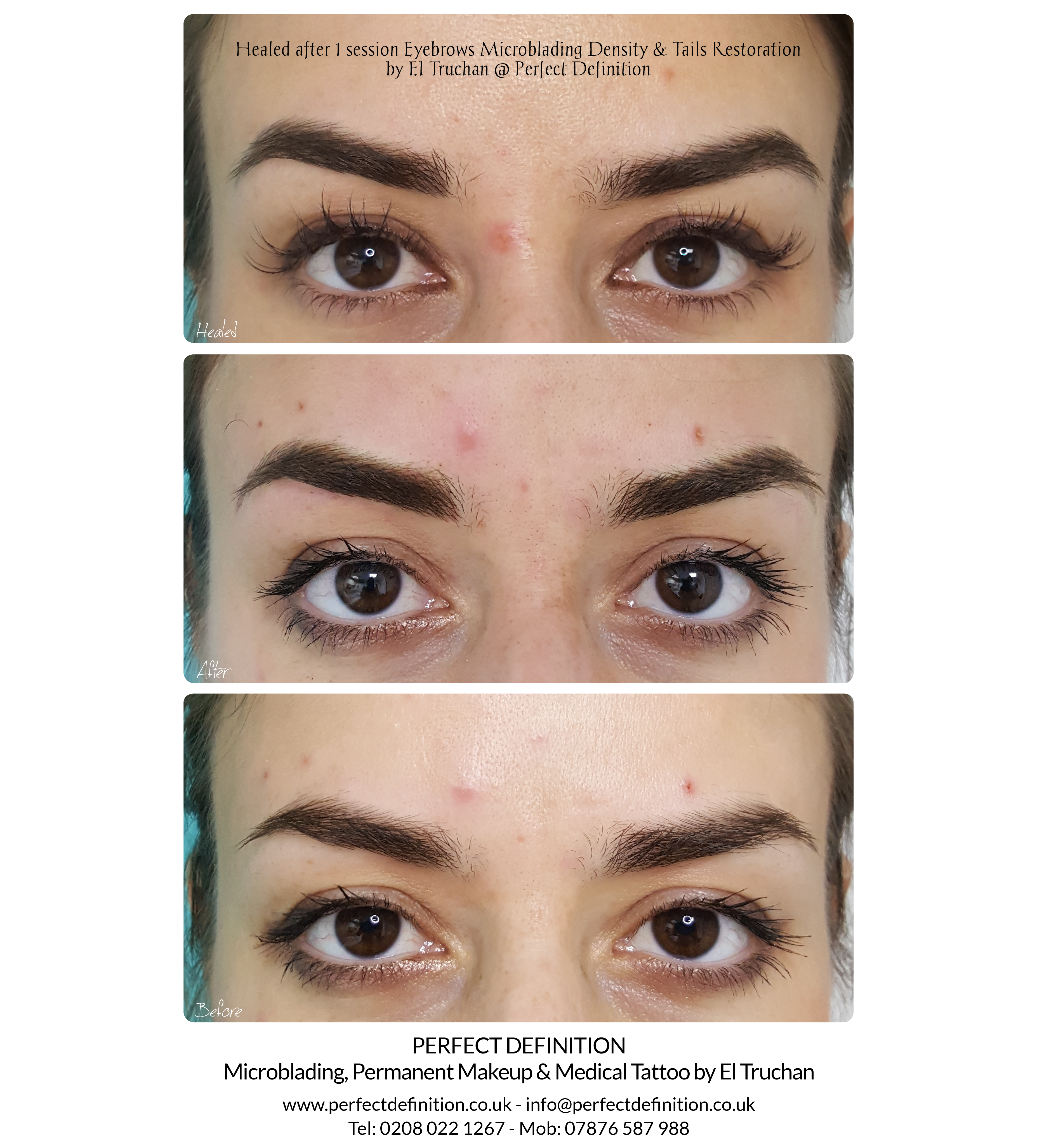 Healed Eyebrows Microblading Density & T