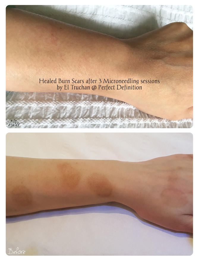 Healed Burn Scars after 3 Microneedling sessions by El Truchan @ Perfect Definition