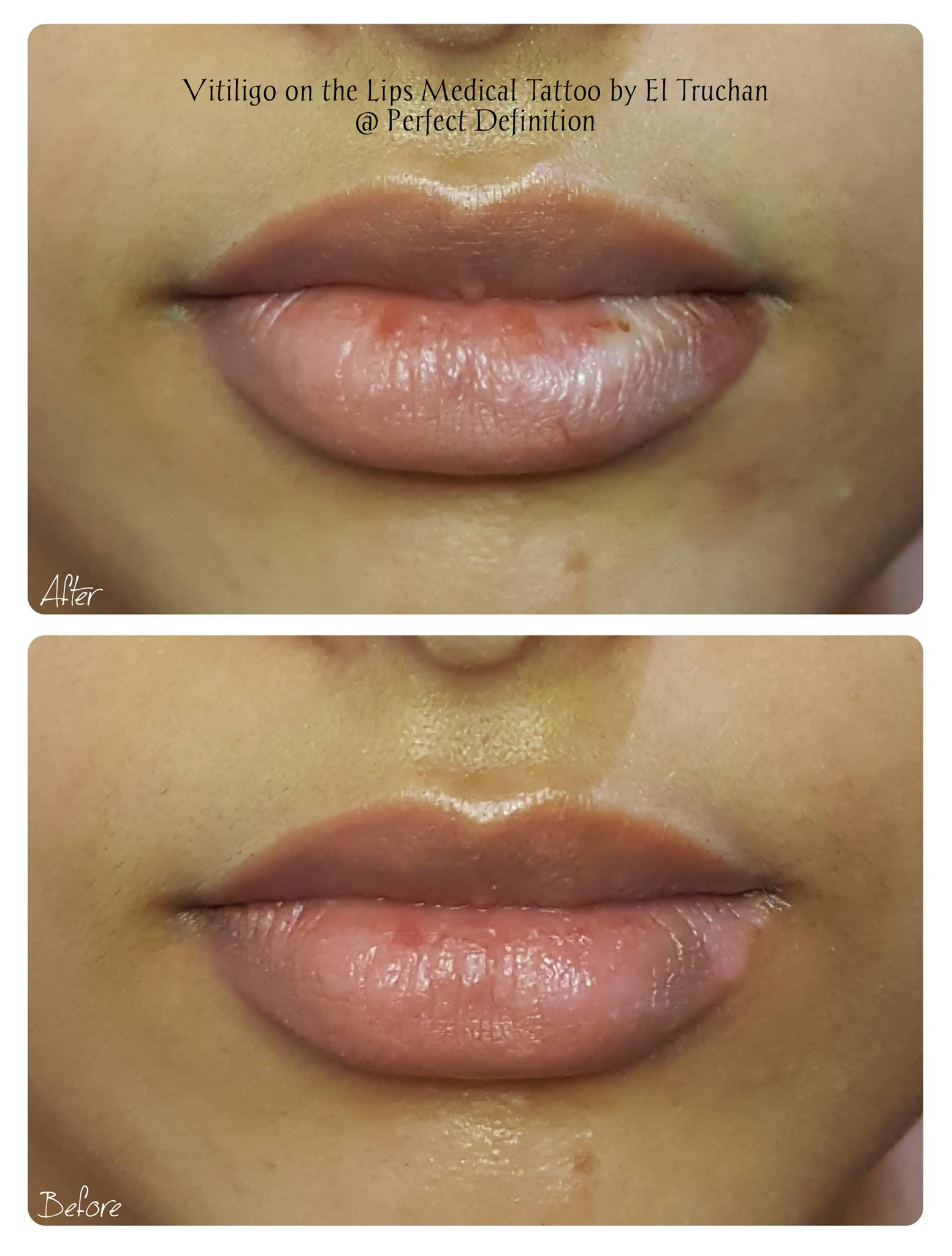 Vitiligo on the Lips Medical Tattoo by E