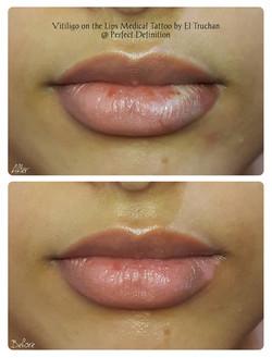 Vitiligo on the Lips Medical Tattoo by E