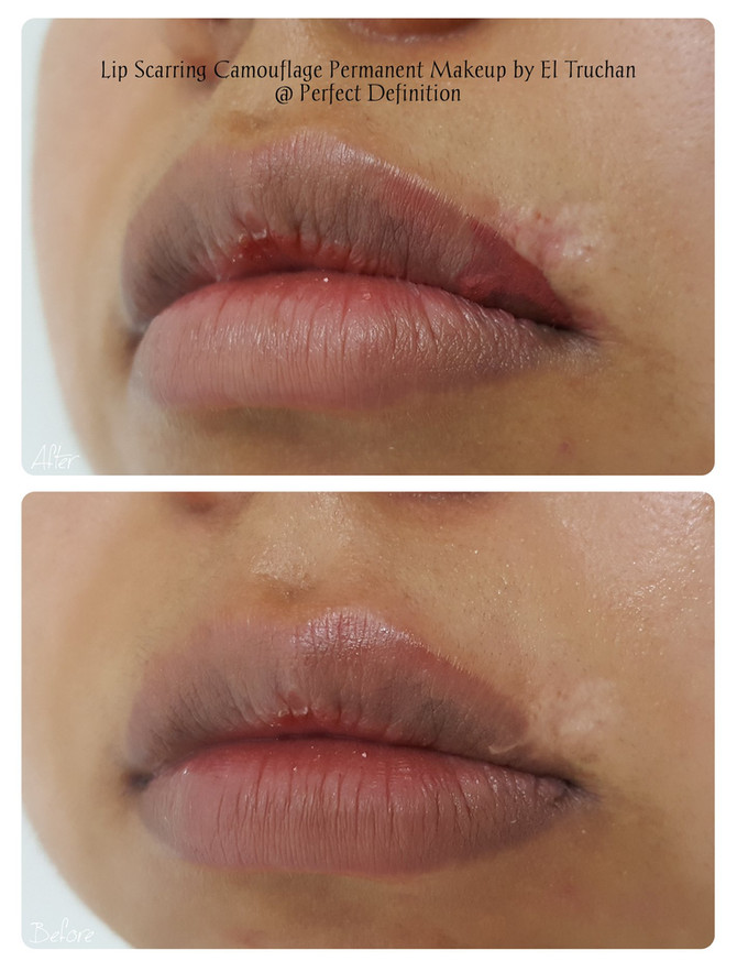 Lip Scarring Camouflage Permanent Makeup by El Truchan @ Perfect Definition